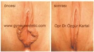 resim-2) Labioplasti öncesi ve sonrası resimler