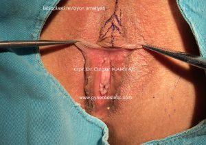 iç dudak estetiği revizyon ameliyatı resimleri